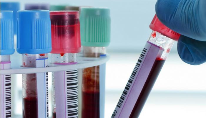 Pandemia pode colaborar para diagnóstico tardio de doenças